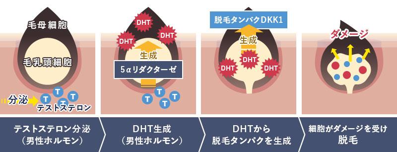 テストステロン分泌>DHT生成>DHTから脱毛ダンパクを生成>細胞がダメージを受け脱毛