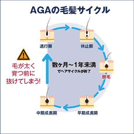 AGAの毛髪サイクル