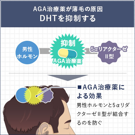 AGA治療薬が薄毛の原因 DHTを抑制する