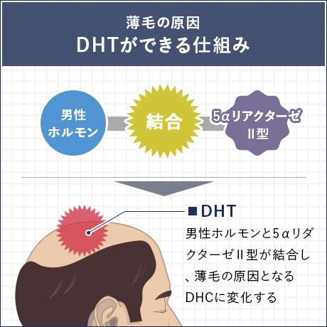 薄毛の原因 DHTができる仕組み