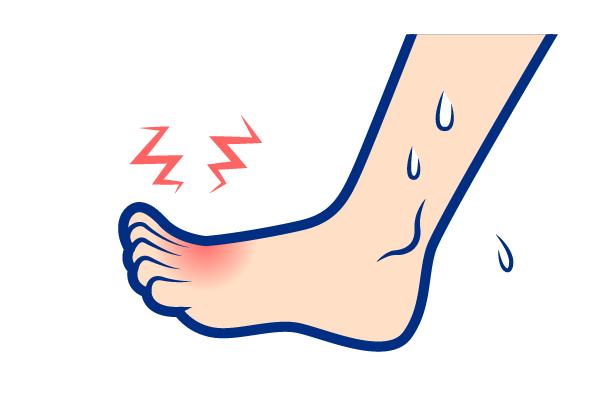 痛風の症状:足の親指の付け根・足関節・足の甲