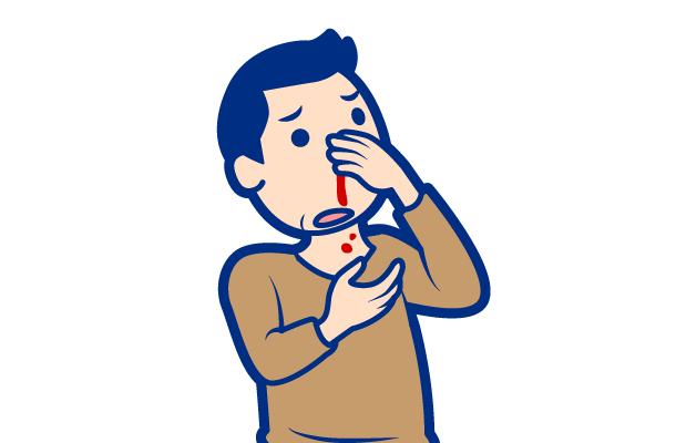 耳鼻咽喉科が対応する症状:鼻血