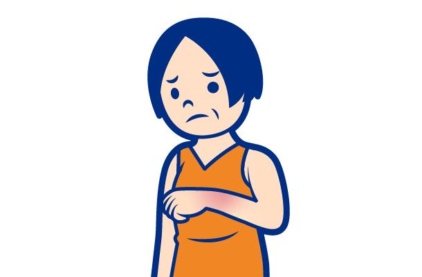 かぶれの症状:赤み・むくみ
